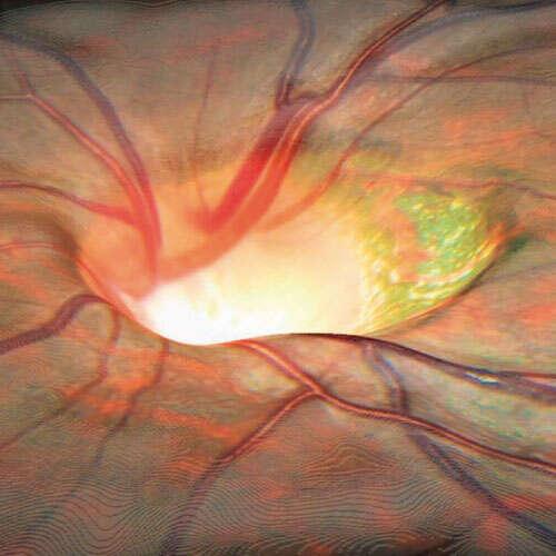 ¿Qué es OCT de nervio óptico?
