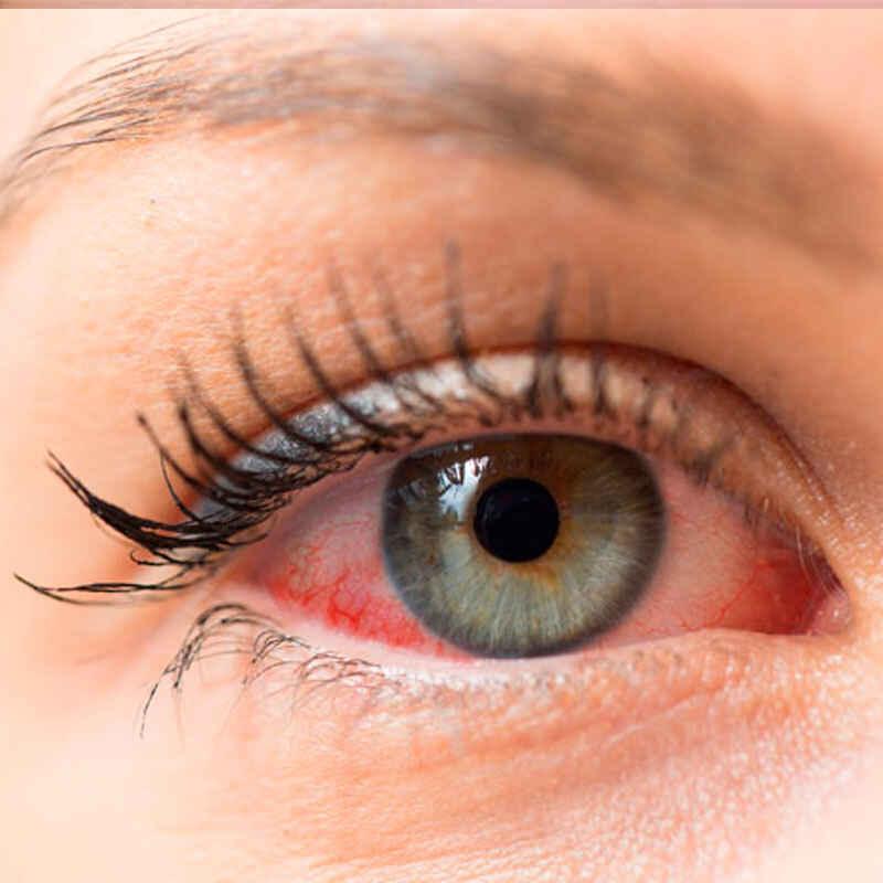¿Cómo tratar el ojo seco?